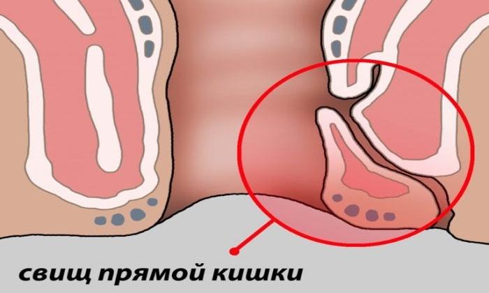 Препарат используют в составе комплексной терапии при свищи выходного отдела кишечника