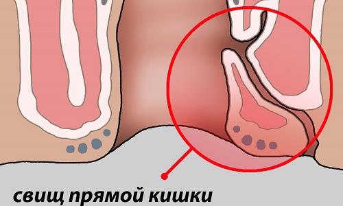 Свищ прямой кишки представляет собой патологический канал, который образуется в параректальной клетчатке