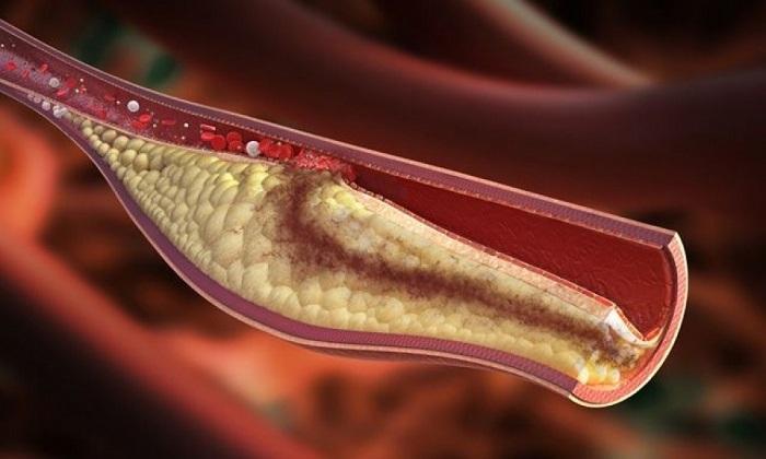 Мазь Эскузан предотвращает тромбообразование и закупорку вен