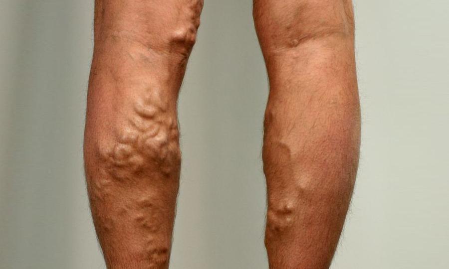Флебавен эффективен при затяжных болезнях вен в нижних конечностях