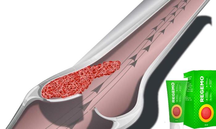 Курсовое применение продукта обеспечивает укрепление вен, рассасывание тромбов