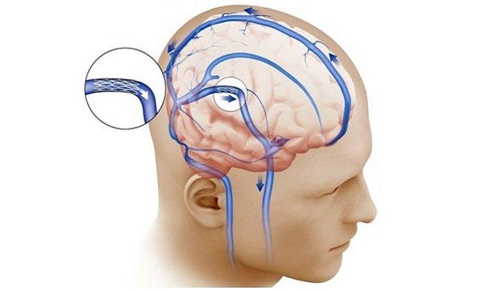 Милдронат противопоказан при повышенном внутричерепном давлении