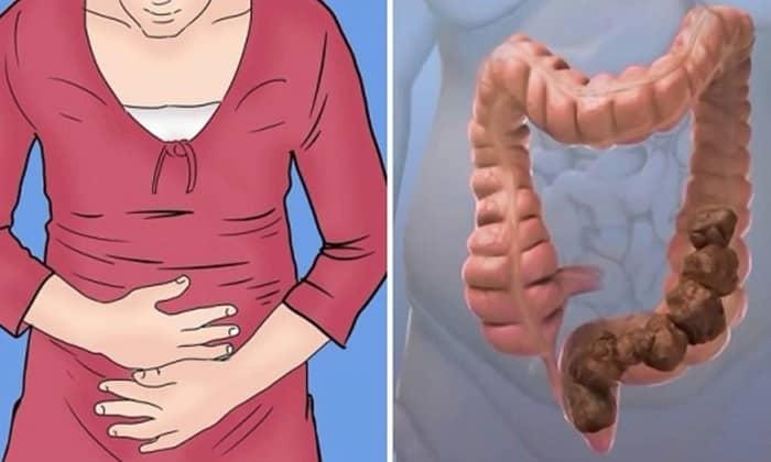 При запорах спастического типа принимать натрия пикосульфат запрещается