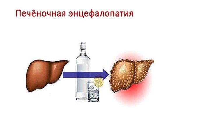 Нормазе назначают при печеночной энцефалопатии