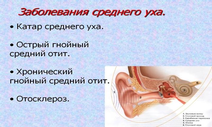 Мазь применяется при тяжелом течении воспаления среднего отдела слухового канала