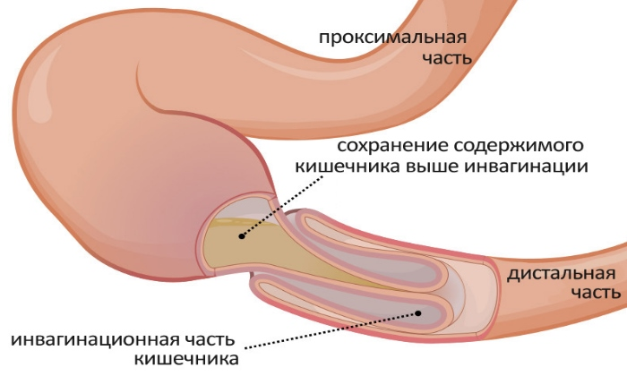 Врачи назначают Натрия Хлорид 0,9% при непроходимости кишечника