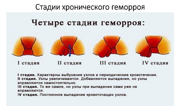 Димексид, Новокаин и Диклофенак помогает при геморрое