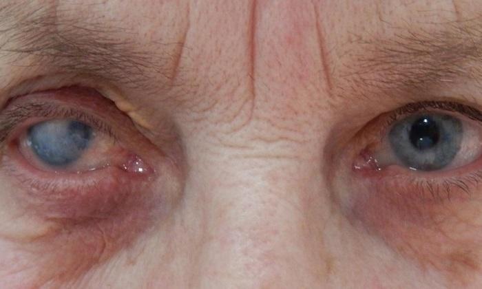 Пациентам, страдающим глаукомой принимать Но-шпу запрещено