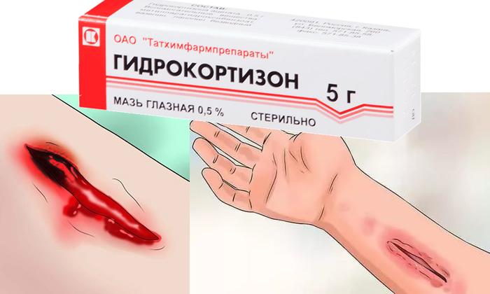 Нельзя наносить мазь на участки кожи с открытыми ранами и язвами