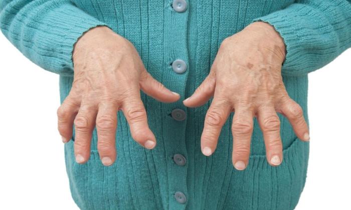 Препарат назначают при артрите