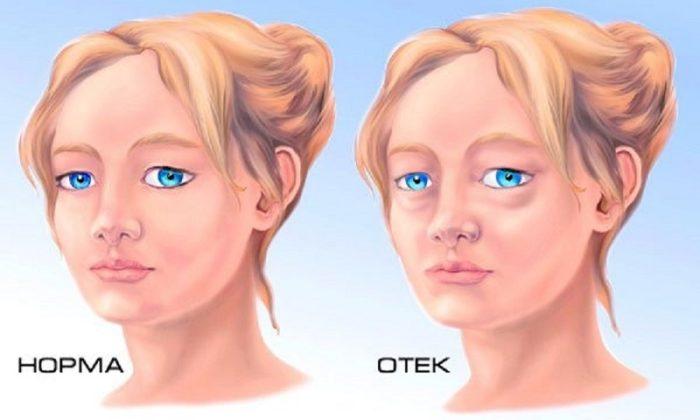 Побочным эффектом от препарата может быть отек лица
