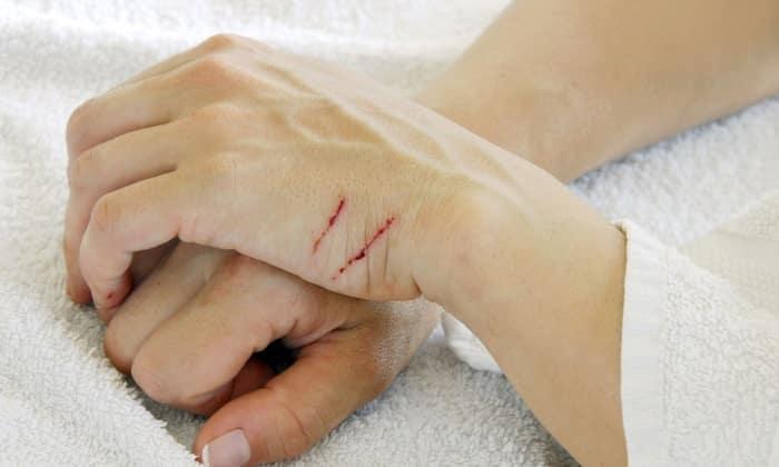 Для заживления ран рекомендован раствор NaCl