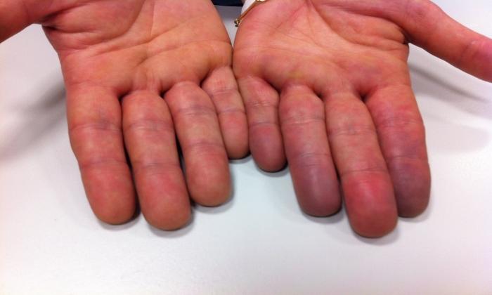 При нанесении препарата на обширные участки кожи возникает синюшность кожных покровов