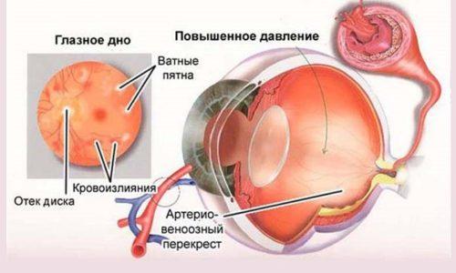 При использовании свыше 10 суток возможно повышение внутриглазного давления