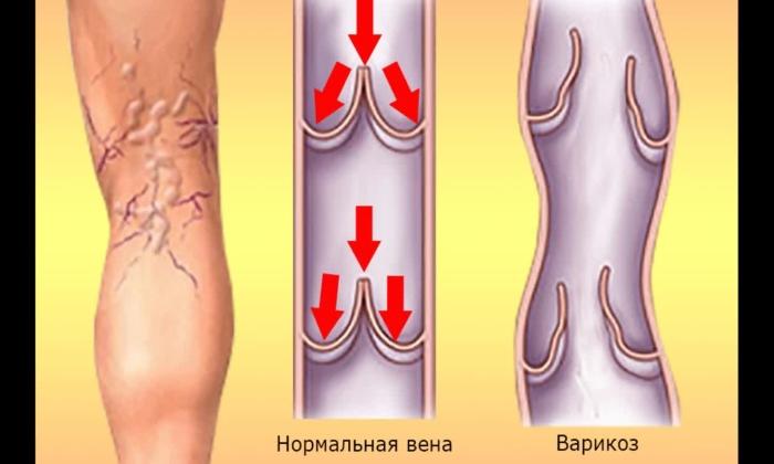 Препарат назначают при варикозе