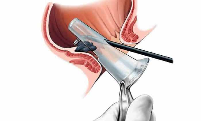 Для выявления внутренних поврежденных участков в область прямой кишки вводят аноскоп с подсветкой