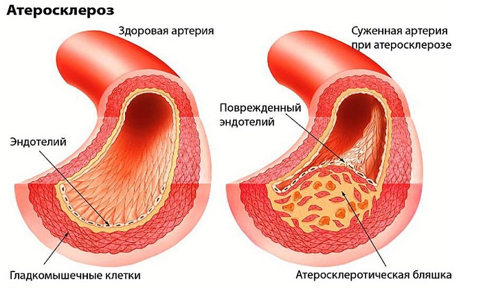 Прополис используется при атеросклерозе