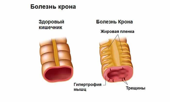 Пентаса назначается для лечения болезни Крона