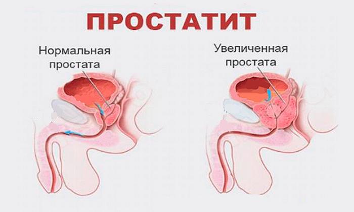 Инъекции препарата назначаются при простатите
