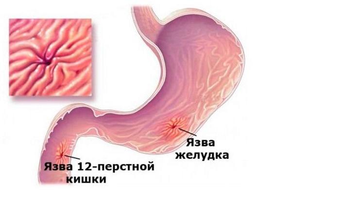 Инъекции препарата назначаются при язвенном поражении желудка или двенадцатиперстной кишки