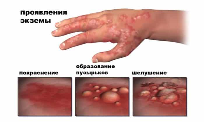 Левометил противопоказан при экзематозном поражении