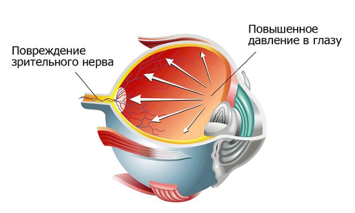 Препарат может использоваться в комплексной терапии при необходимости снизить глазное давление