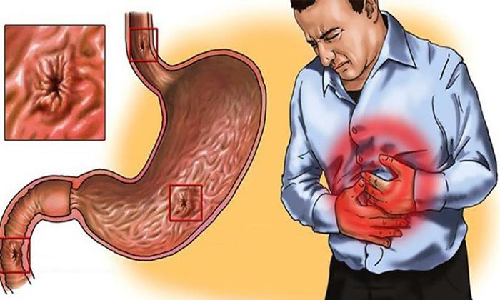 Язва желудка является противопоказанием к применению Гидрокортизона