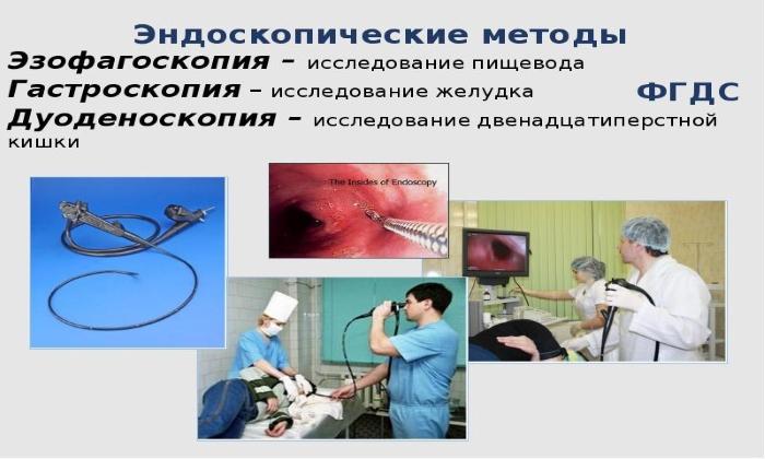 Мазь применяется при эндоскопическом исследовании пищевода