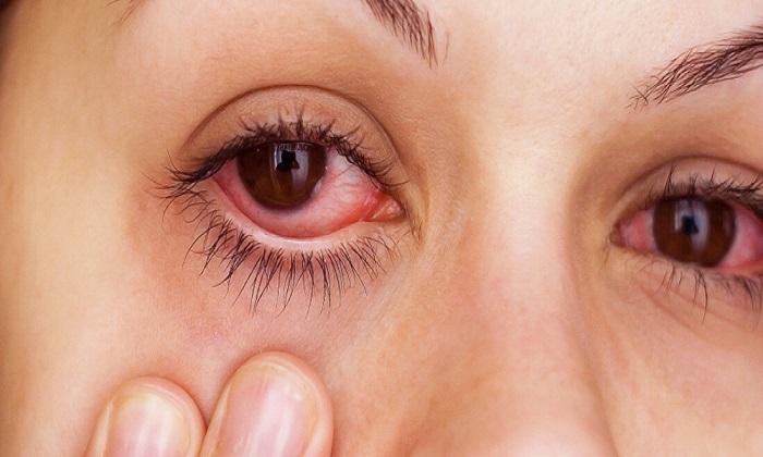 Ретинола ацетат применяют при лечении заболеваний глаз