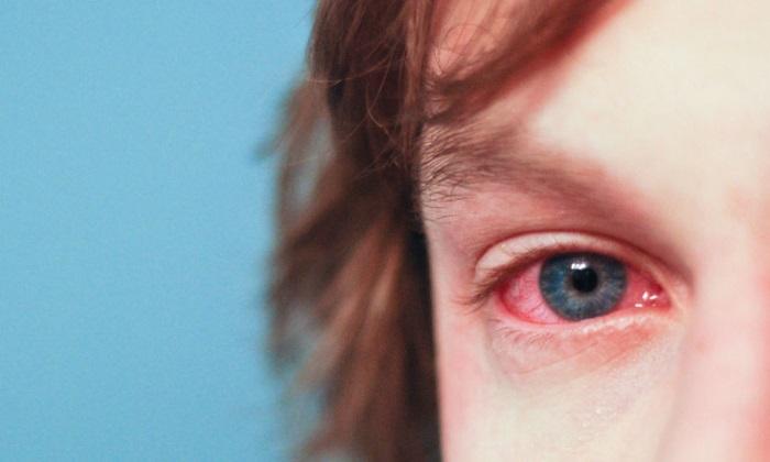 Лекарственное средство назначается для лечения воспалительных заболеваний глаз
