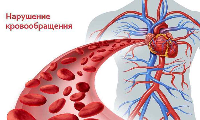 При нарушении кровообращения запрещено принимать Гидрокортизон
