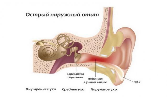 Мазь применяется при болях в наружном слуховом проходе