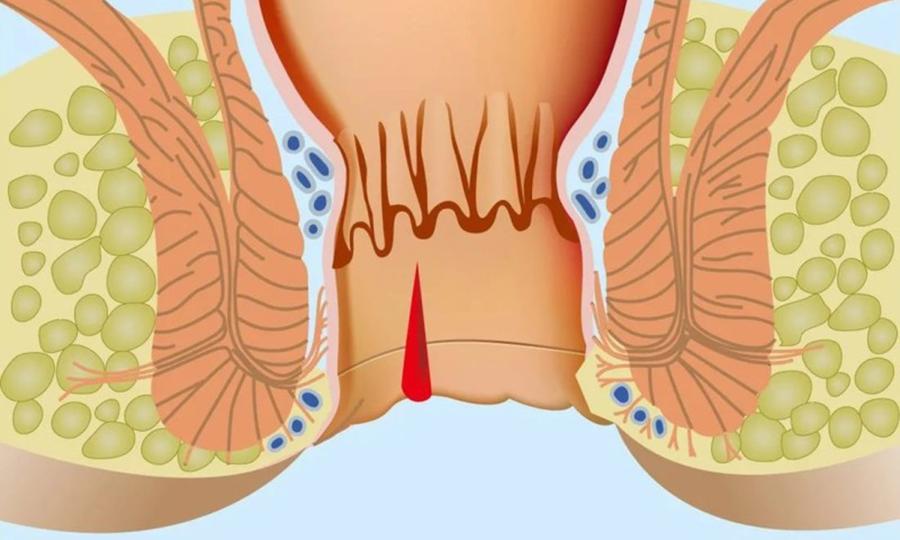 Вазелин Норка используют для заживления микротрещин в области анального отверстия