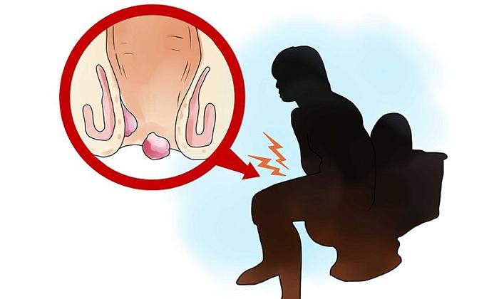 Гидрокортизон уменьшает размеры шишек за счет нормализации венозного кровотока, повышает эластичность и тонус мышц ректальной зоны