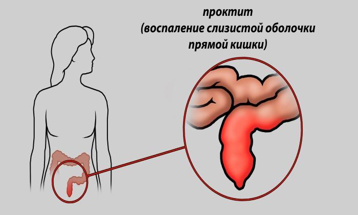 Побочным эффектом от препарата может быть катаральный проктит