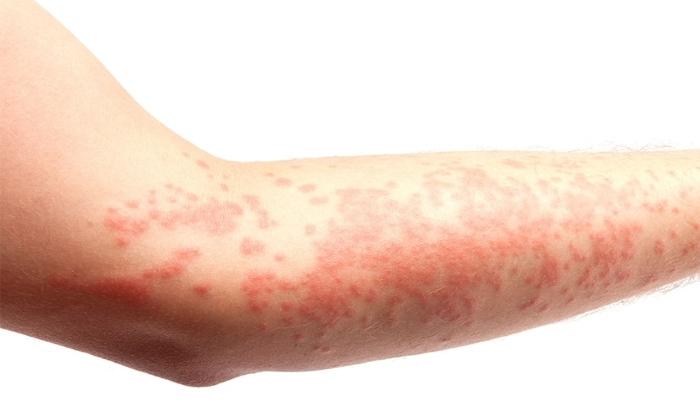 Побочным эффектом от препарата может быть аллергия