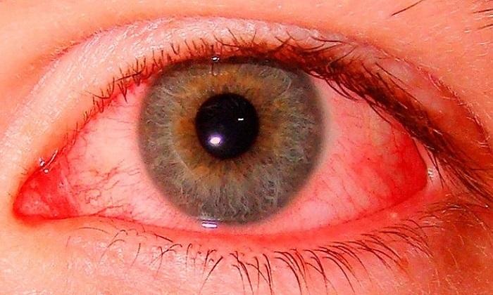 В офтальмологии лекарство применяют при раздражении глазного яблока