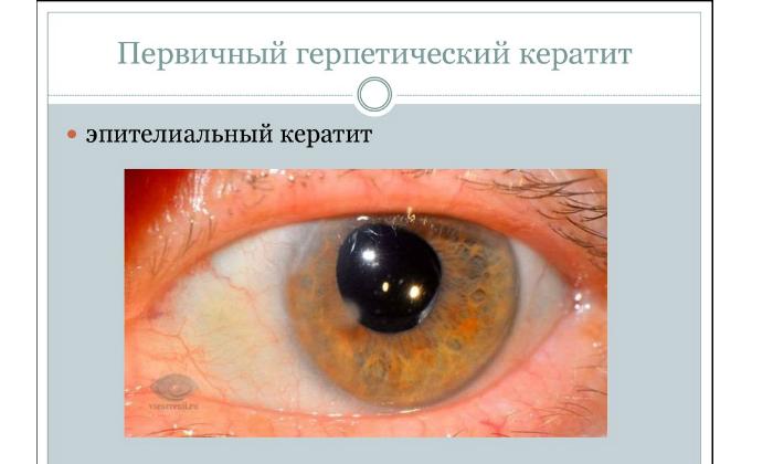 В офтальмологии лекарство применяют при кератитах