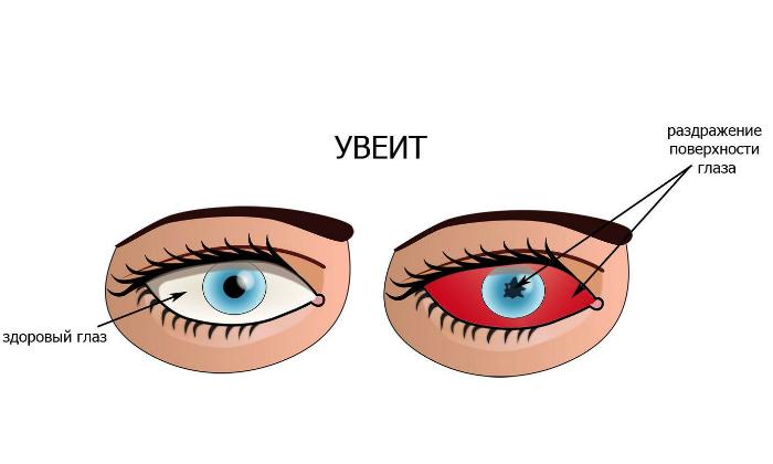В офтальмологии лекарство применяют при увеитах