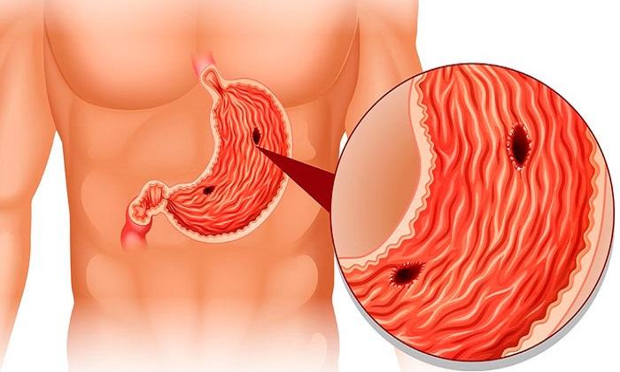 При эрозивном гастродуодените и язвенной болезни в терапию добавляют Ретинола ацетат