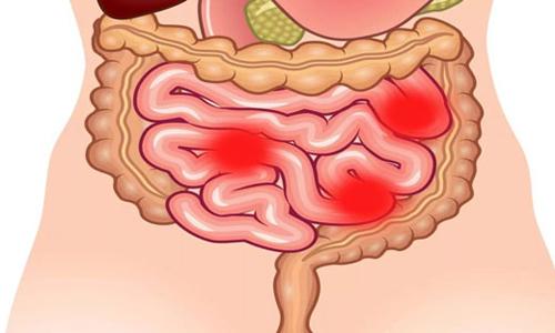 Под дискинезией подразумевают расстройство работы кишечника, которое возникает на фоне нарушения его моторной функции