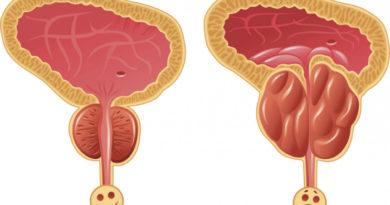 Причины и клинические проявления абактериального простатита