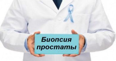 Проведение биопсии предстательной железы