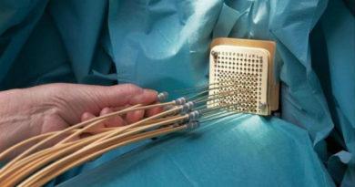 Брахитерапия – новейший способ лечения рака предстательной железы