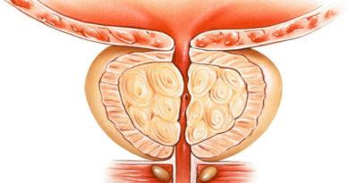 Симптомы, причины возникновения и лечение конгестивного (застойного) простатита