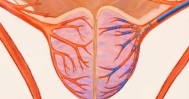 Что такое эмболизация артерий простаты