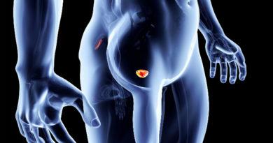 Причины и лечение герпетического простатита у мужчин