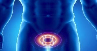 Причины и лечение кандидозного простатита