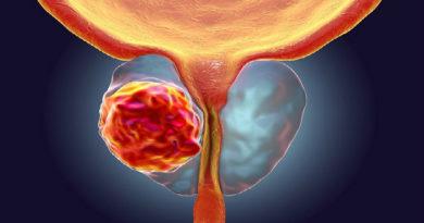 Методы классификации рака простаты
