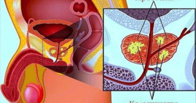 Что такое кальцинаты в предстательной железе и как их лечить
